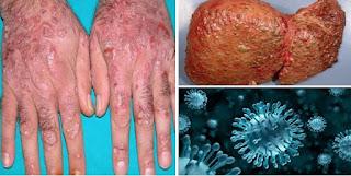 hepatitis se bachne ka gharelu elaj