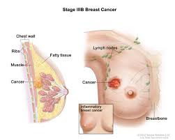 Breast cancer is a dangerous tumor created from cells of the breast, and it is a standout amongst the most widely recognized malignancies influencing females