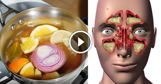 They Call It The Bomb The Remedy To Remove Nasal Congestion, Sinusitis And Flu In 1 Day