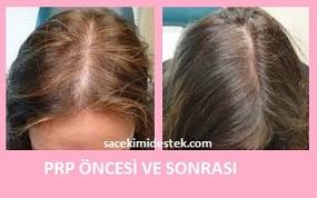 prp saç tedavisi yaptıranlar 28