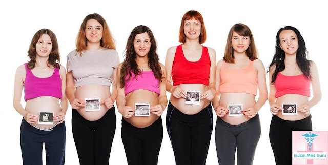 Tubal Ligation Surgery India with Indianmedguru Consultants