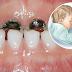 Jangan biarkan bayi tertidur dengan botol mengandungi susu, elak gigi rosak