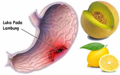 Wow, Diet Jeruk Lemon Ternyata Ampuh Turunkan Berat Badan