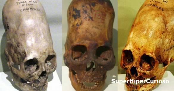 Os famosos crânios de Paracas têm sido considerados por muitos como sendo o elo perdido da origem humana