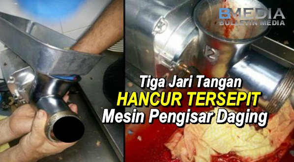 6 Gambar Mengerikan Tiga Jari Tangan Hancur Tersepit Mesin Pengisar Daging