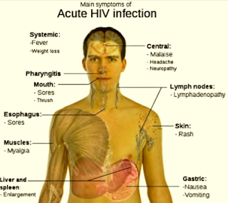 HIV Common Symptoms