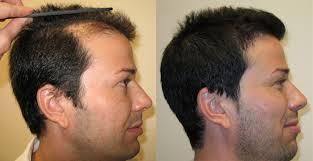 saç ekimi öncesi ve sonrası foto 35