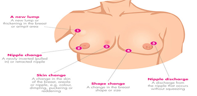 check for breast cancer