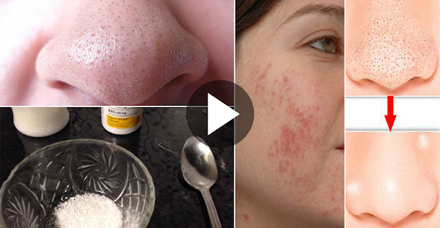 Home Remedies For Treat Bullets, Dark Spots, Acne Marks, And Scars On Face!