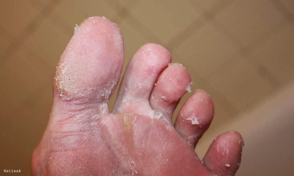 pieds qui pelent