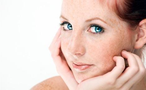Cream Wajah Penghilang Melasma