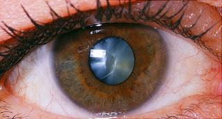 http://www.amrithospital.com/cataract.html