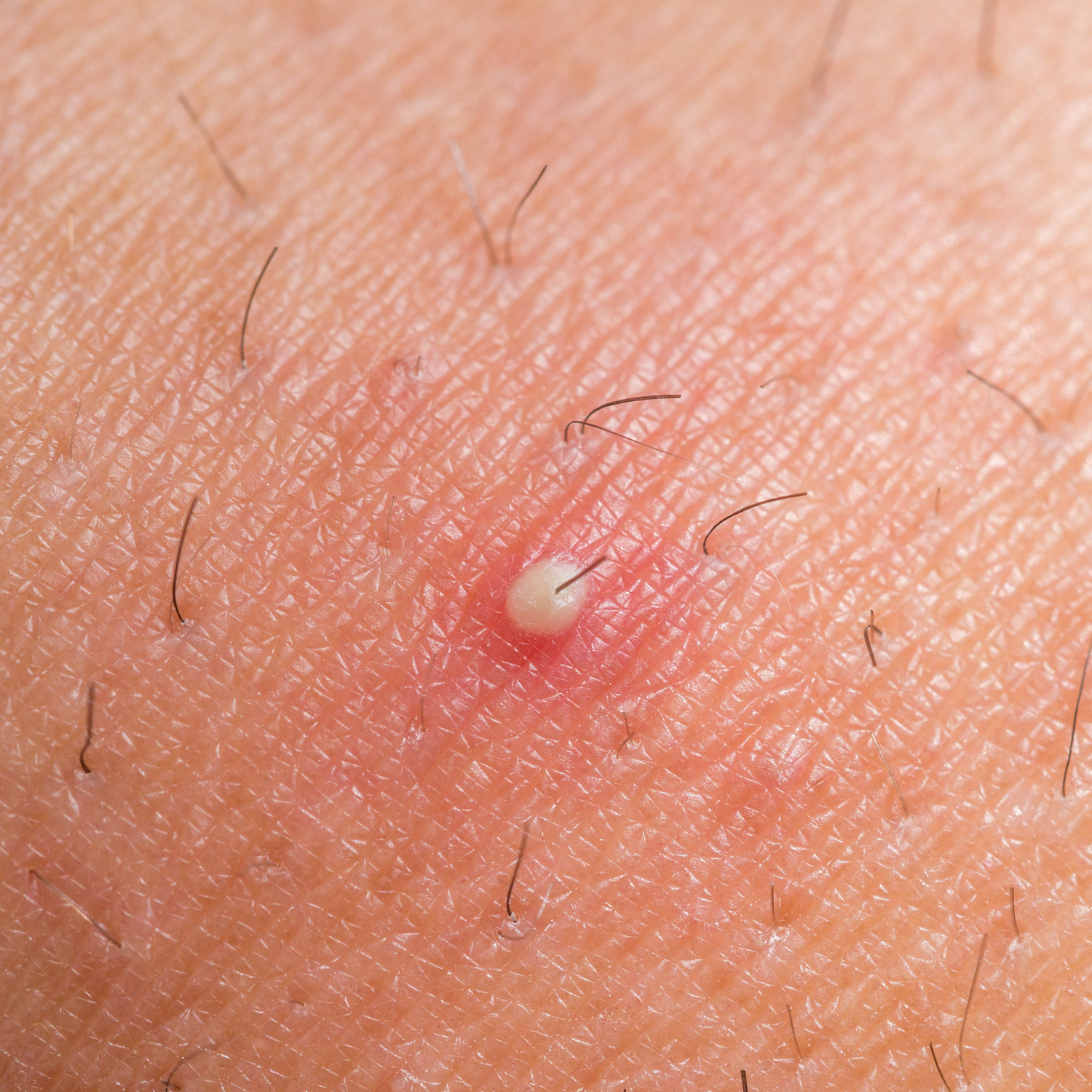 Health Encylopedia [ Health Home Page ] : Ingrown Hair