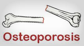 http://www.medkes.com/2014/06/manfaat-olahraga-untuk-penderita-osteoporosis.html