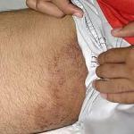 Salep Obat gatal pada selangkangan pria