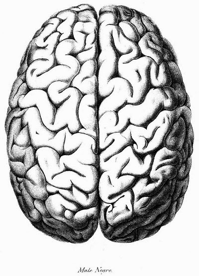 Lateral Science: On the brain of the Negro, compared with