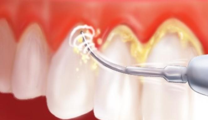 Cara Mudah Dan Alami Bersihkan Karang Gigi
