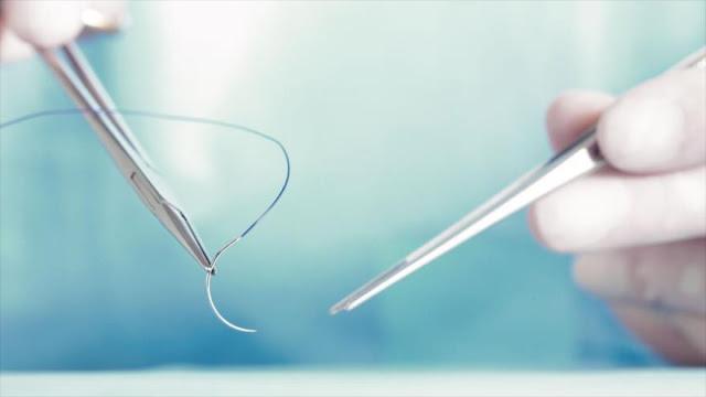 """Hilo """"inteligente"""" sutura el tejido y recopila datos diagnósticos"""