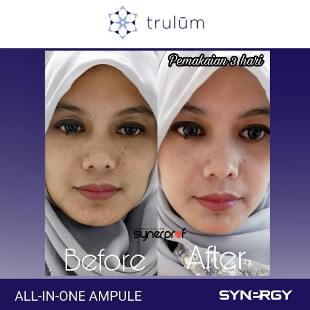 Jual Serum Penghilang Keriput Trulum Skincare Kemang