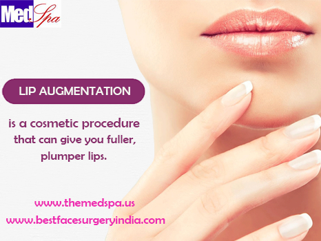 lips, lip augmentation, lip filler, lip enhancement, lip implants, enlarge lips, lip lift, injectable fillers, fuller lip, dermal filler, cosmetic surgery, plastic surgeon