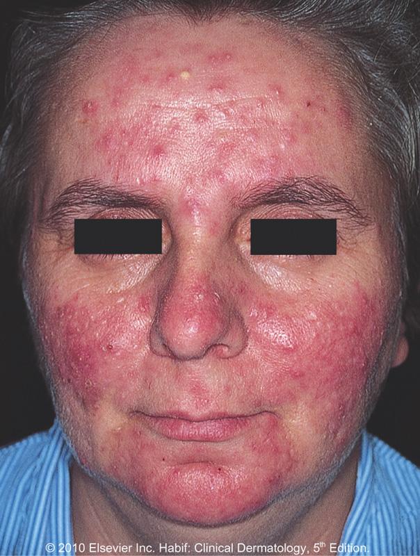 Lupus Skin Rash Natural Treatment