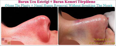 Nose tip plasty operation in İstanbul