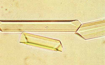 Triple phosphate crystals