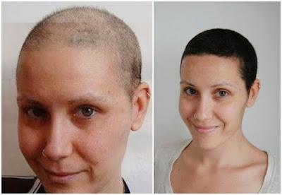 Testimoni Biotin Supplemen Penumbuh Bulu Dada, Kumis, Jenggot, Rambut dan Kuku