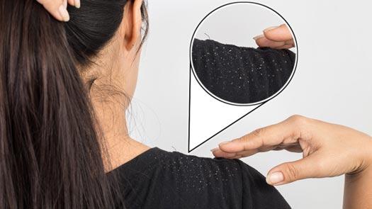 علاج قشرة الشعر في الطب البديل