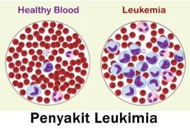Kelainan Penyakit dan Gangguan Pada Sistem Peredaran Darah Manusia