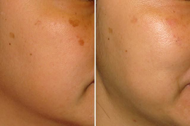 ازالة الكلف من الوجه نهائيا %25D8%25A7%25D8%25B2