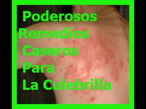 Culebrilla sintomas remedios caseros