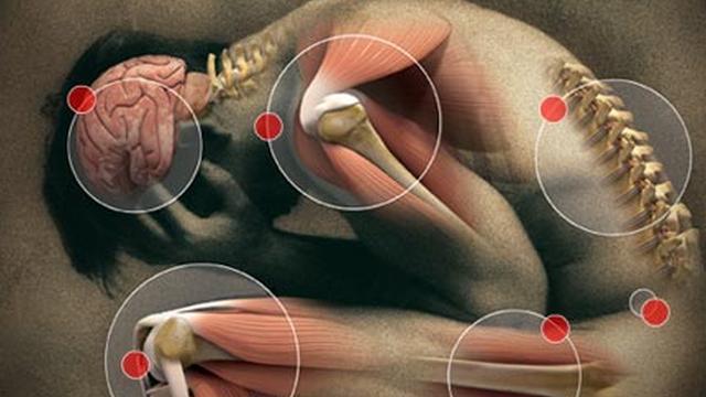 obat tradisional nyeri otot