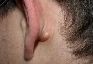 Kulak Arkasında Şişlik Ve Ağrı Tehlikeli midir?