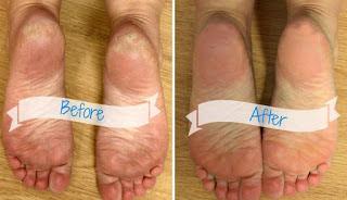 طريقة رائعة للقضاء على تشقق الأقدام والتخلص من الجلد الميت