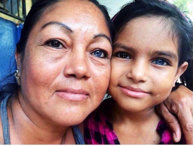 أم وطفلتها ، وأعينهم غريبة اللون !