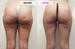 Cellulite clinic LipoTherapeia introduces specialist treatments