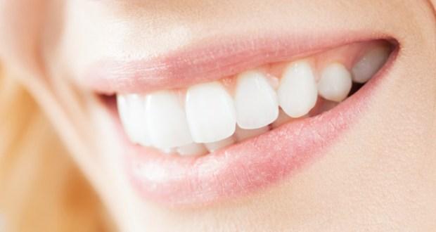 Tips Membuat Gigi Putih & Senyum Lebih Indah