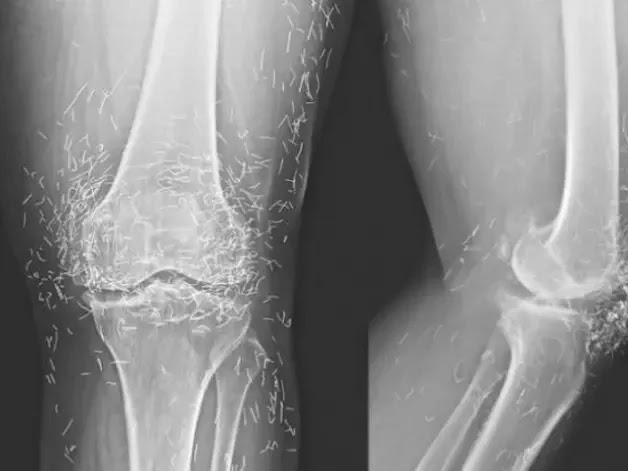 ΑΠΙΣΤΕΥΤΟ: Πήγε στο γιατρό επειδή της πονούσαν τα γόνατα και αυτός βρήκε ότι είχε...