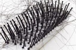 8 Cara Mengatasi Rambut Rontok Pasca Melahirkan Secara Alami