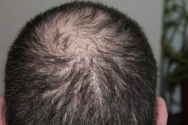 Queda de cabelo: Porque acontece e pode ser interrompida?
