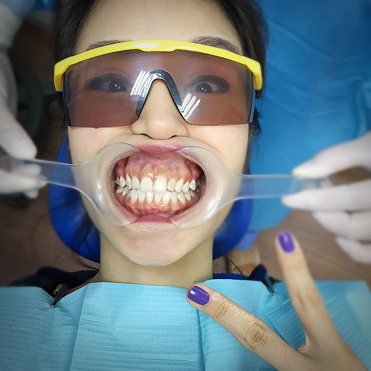 Wedding White Teeth: Vanny's Telling Everything.: Wedding Beauty Tips For The