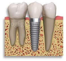 → Implantes dentários: tudo o que você precisa saber.