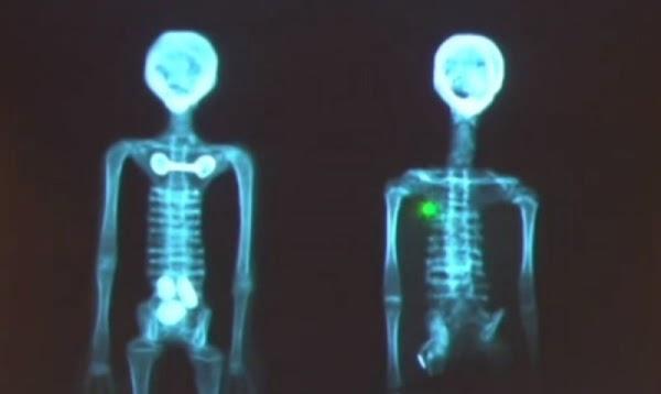 Momias encontradas en Perú sí son extraterrestres, dicen científicos.