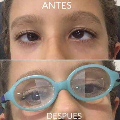imagen niña con estrabismo con gafas correctoras