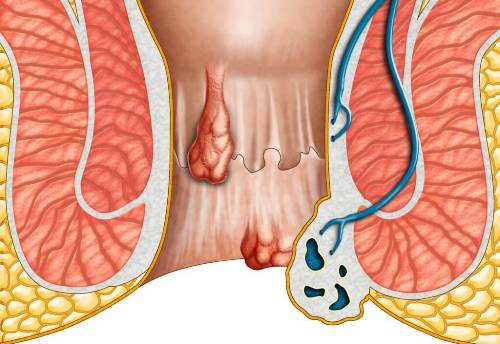 How To Get Rid of Hemorrhoids As A Result of Pregnancy