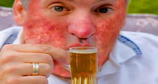 Rosacea Is Related To The Over consumption Of Alcohol