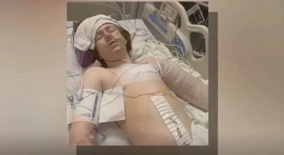 13-Year-Old Boy With Autism Is Shot Several Times By Police In Salt Lake City, Utah
