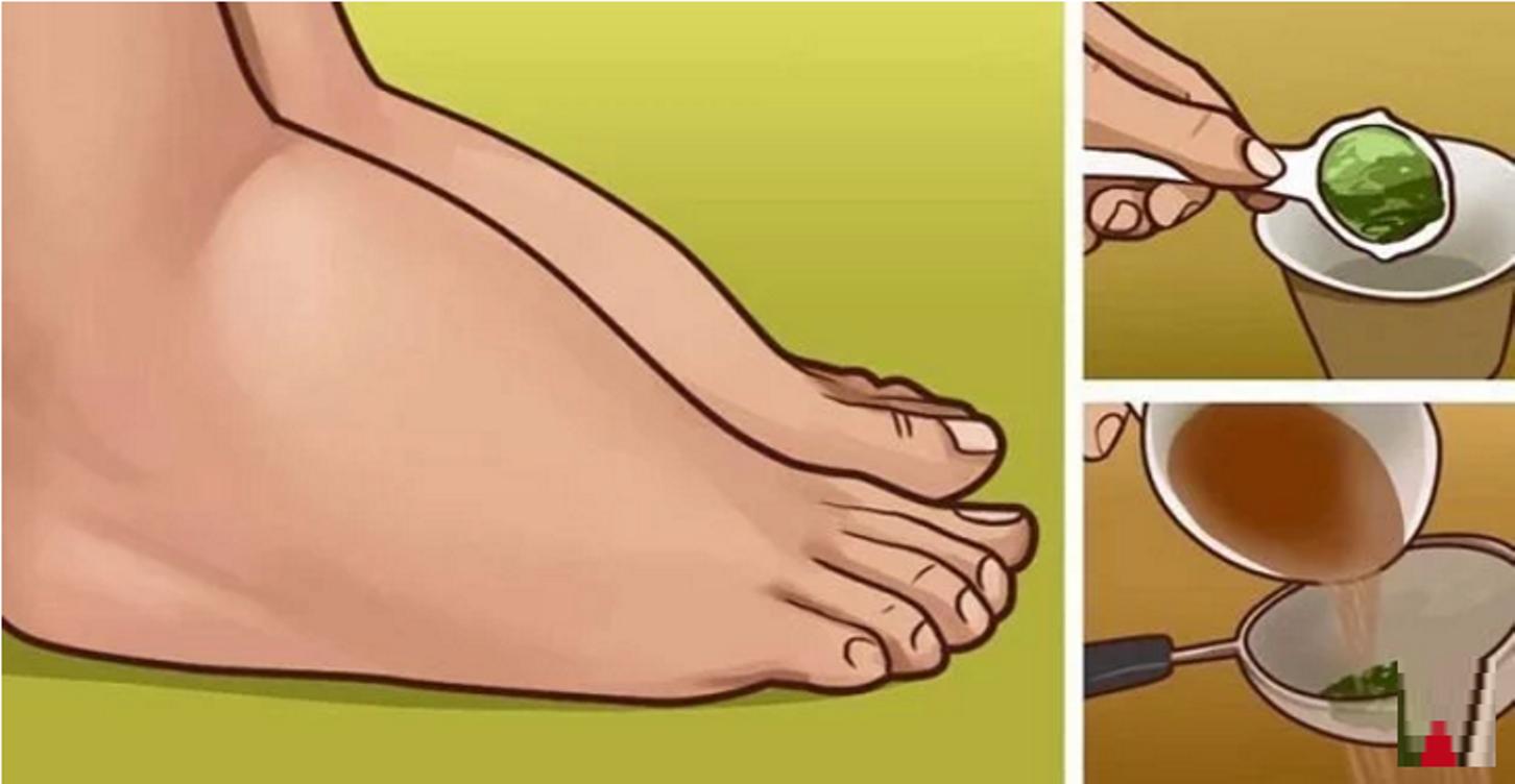 voici comment soigner vos chevilles et pieds enfl s naturellement a marche je t 39 aime maman. Black Bedroom Furniture Sets. Home Design Ideas