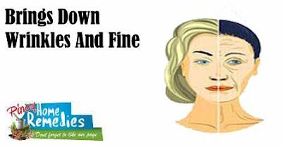 Brings Down Wrinkles And Fine Lines